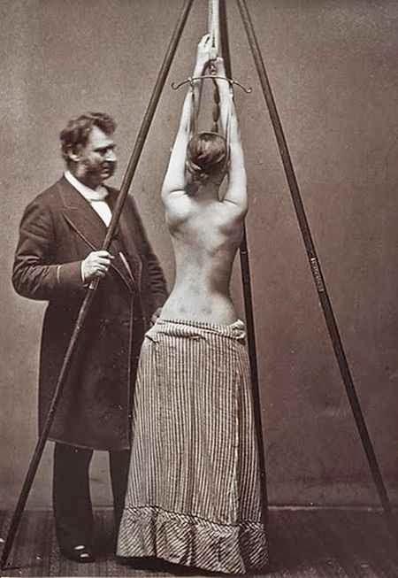 Tratamiento de la escoliosis de Lewis Sayre