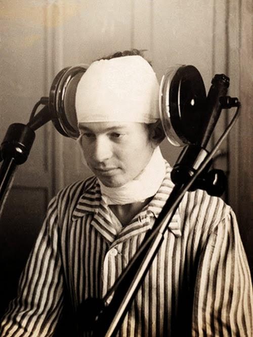 paciente sometido a tratamiento de diatermia cerebral lateral en 1920. La diatermia utiliza una corriente de galvanizado con la que se trata a los enfermos de psicosis. Los médicos finalmente consideraron esta terapia insegura y poco fiable.