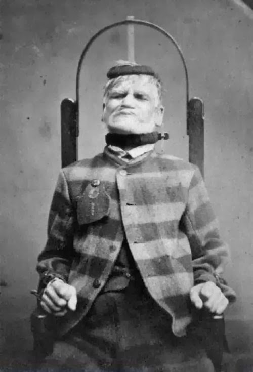 Paciente en silla de inmovilización en el West Riding Lunatic Asylum, Wakefield, Yorkshire. 1869