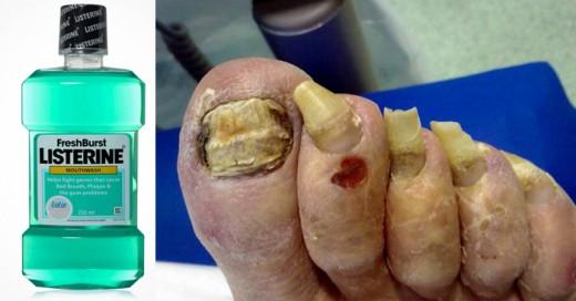 El listerine puede reducir los hongos en las uñas