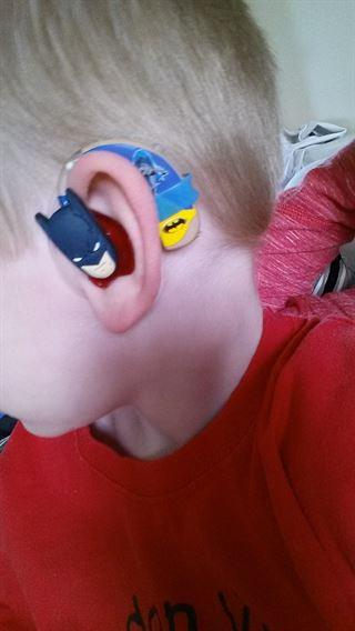 Cabeza de un niño que trae un audífono con diseño de batman