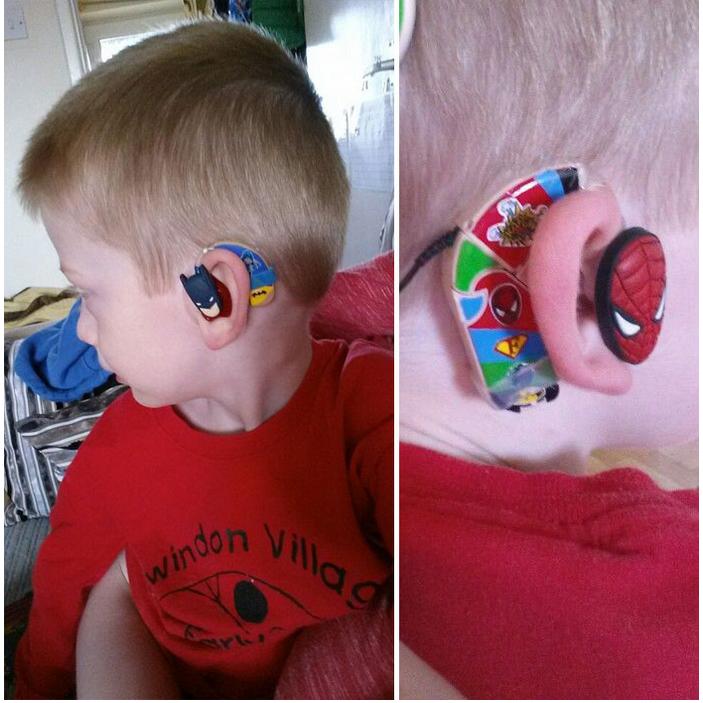 niño con un audífono en su oído
