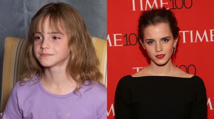 imagen del antes y después de la actriz Emma Watson