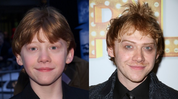 antes y después de Rupert Grint