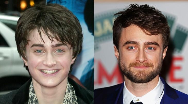 Fotografía del antes y después de Daniel Radcliffe