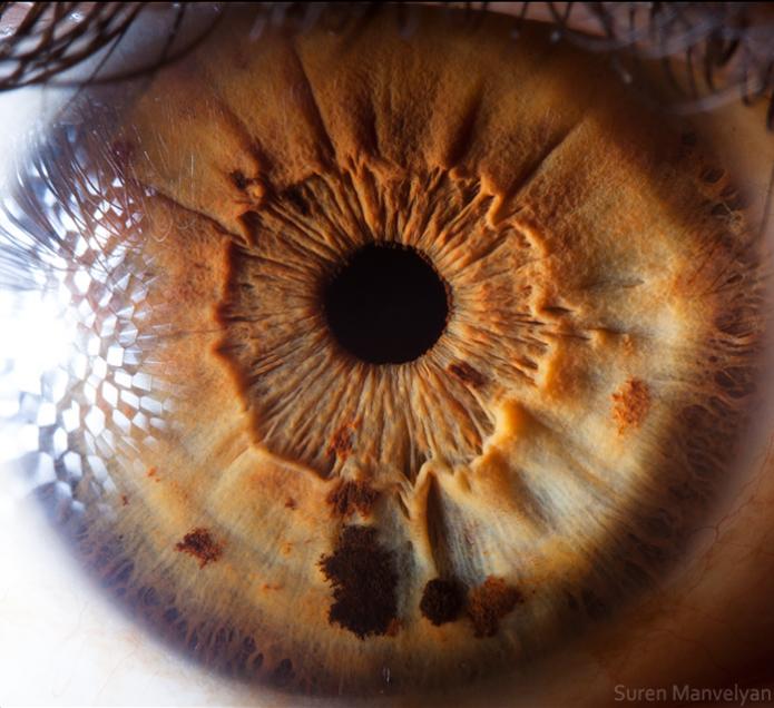 dentro de um olho