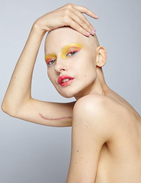 Modelo Elizaveta Bulokhova mostrando la cicatriz de su brazo
