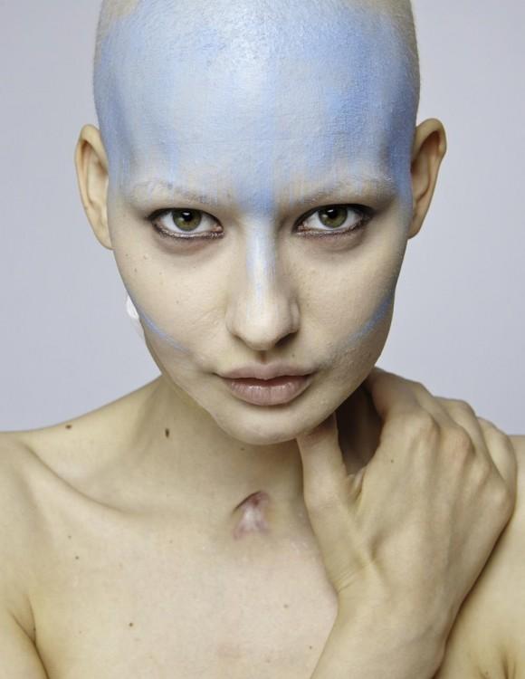 Modelo embarazada es diagnosticada con cáncer de mandíbula