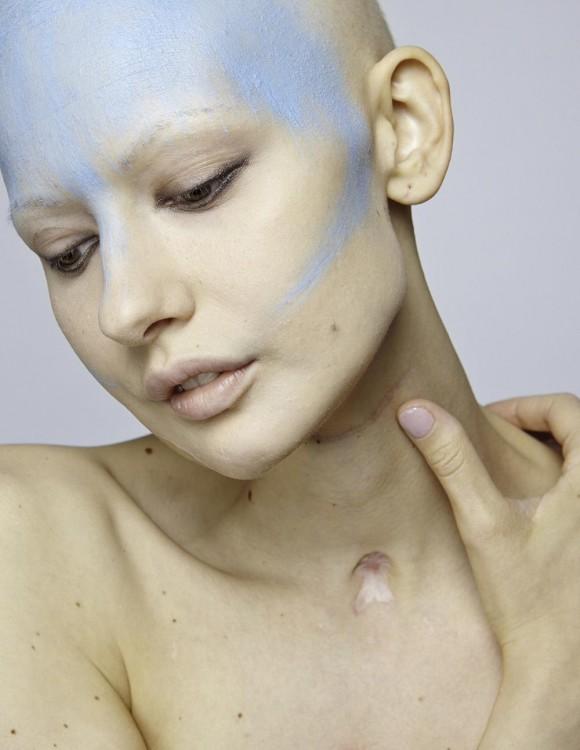Elizaveta Bulakohova la modelo diagnosticada con Cáncer de mandíbula