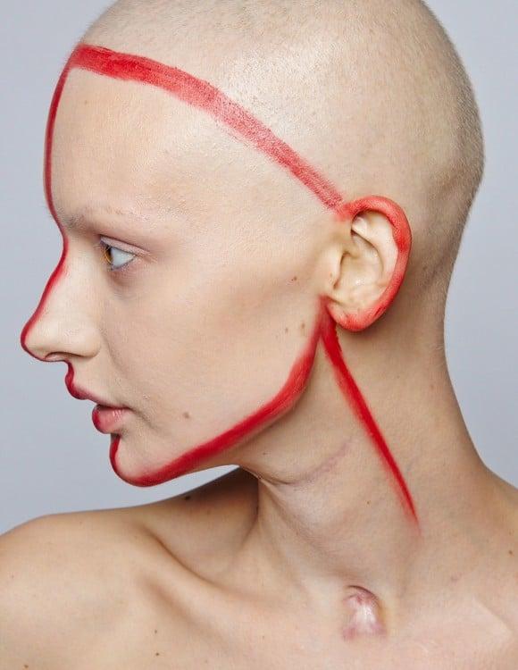 Elizaveta Bulokhova con marcas antes de cirugía de la mandíbula