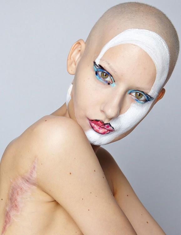 Modelo Elizaveta modelando y mostrando las cicatrices de su cirugía