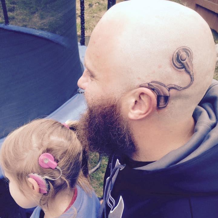 Alistair Campbell el padre una niña que se tatuó un implante coclear en la cabeza