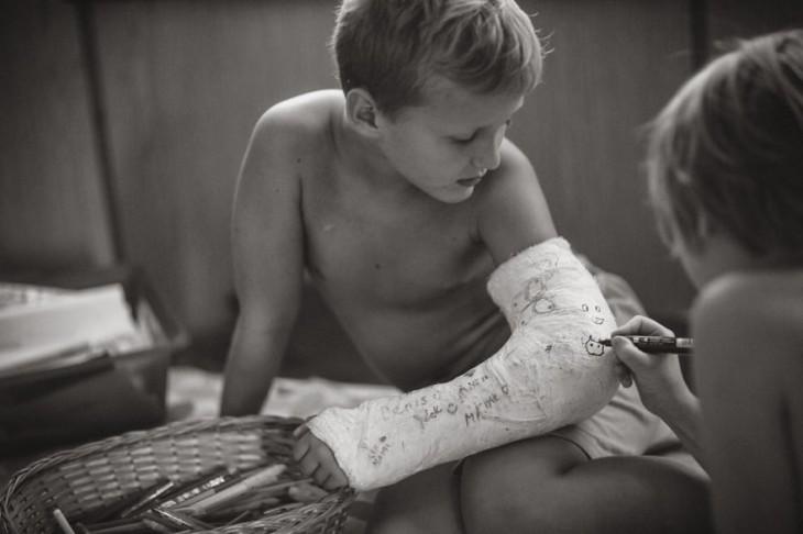 niño con una ferúla en el brazo mientras otro niño se lo firma con un plumon