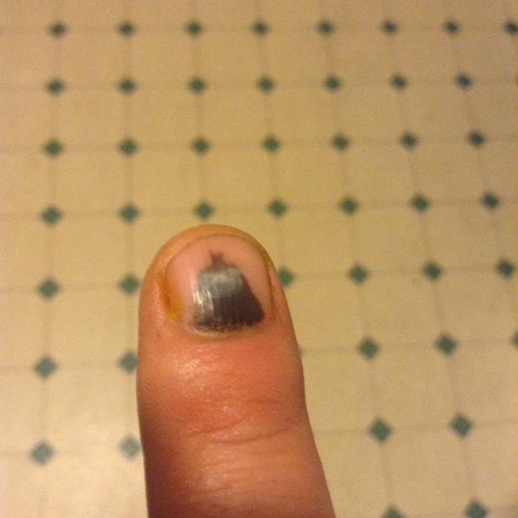 dedo con un machucon que parece batman