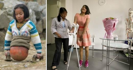 Comparación de niña baloncesto, con piernas