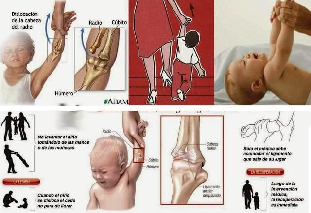 explicación del codo de niñera en los niños de 1 a 5 años