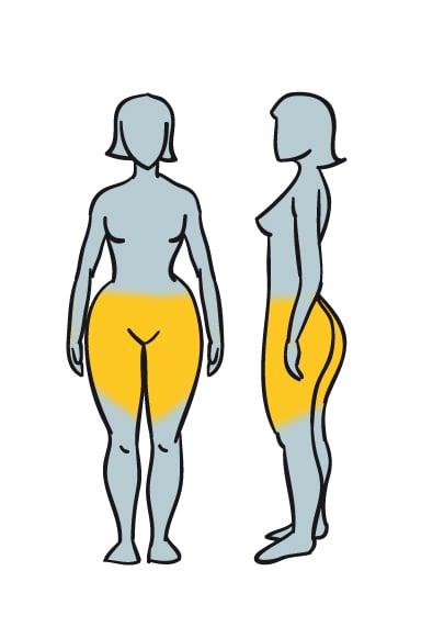 Grasa acumulada en un cuerpo con obesidad glútea