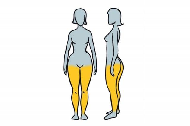 grasa acumulada con un cuerpo con Obesidad circulatoria venosa