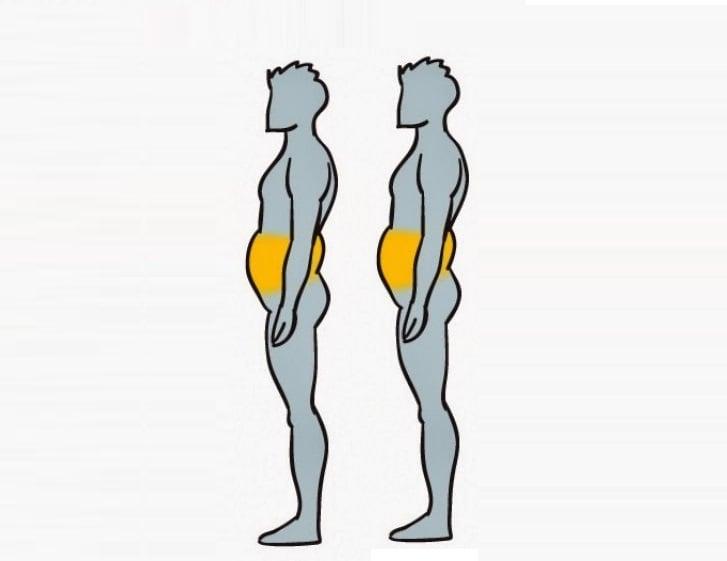 grasa acumulada en un cuerpo con Obesidad abdominal nerviosa