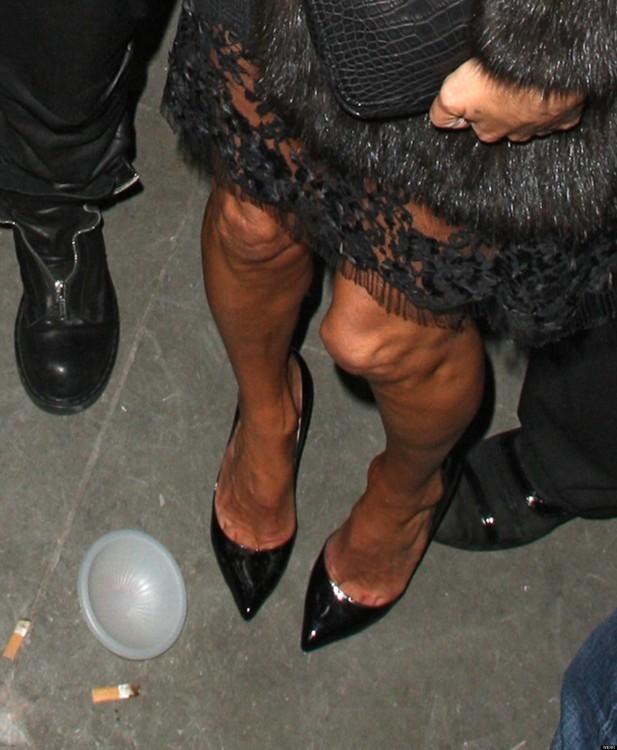 rodillas de kate moss