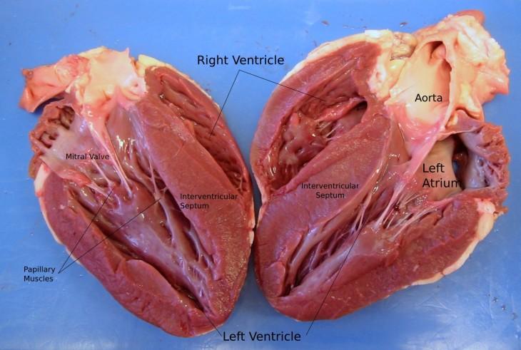 imagen de un corazón humano partido a la mitad