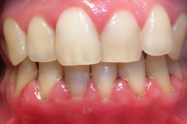 boca, mostrando um gengivas inchadas