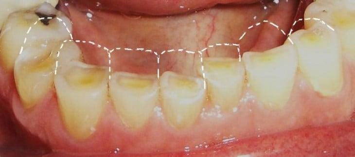 roer as unhas provoca erosão dentária