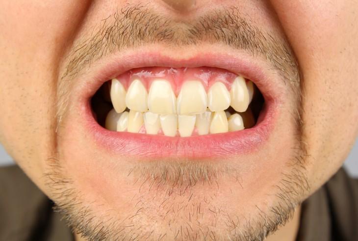 boca de um homem que mostra os dentes