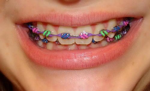 boca de una chica con brackets de colores