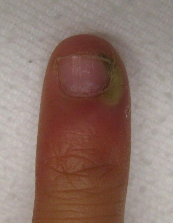 dedo lleno de pus verde