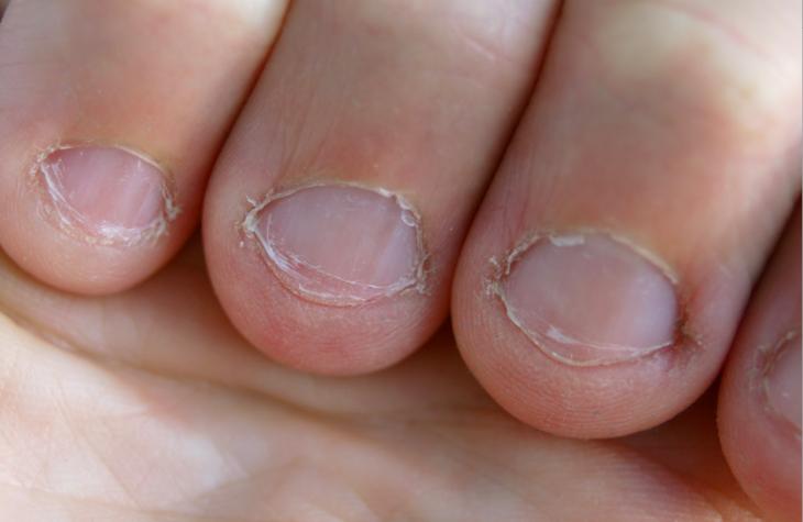 fotografía de uñas dañadas de tanto morderlas