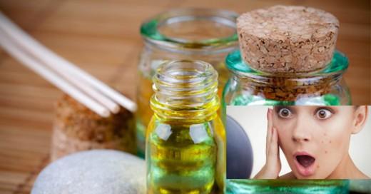 Los remedios caseros son de gran abolengo en nustras culturas