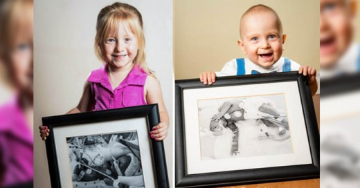 Hermosas fotos de estos premaruros niños en su antes y despues