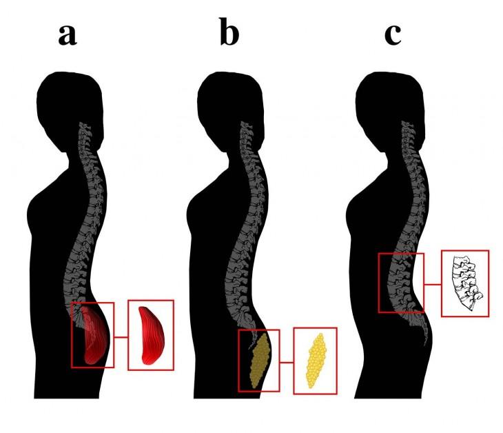 dibujos a blanco y negro del cuerpo de tres mujeres enfocándose en una curvatura lumbar