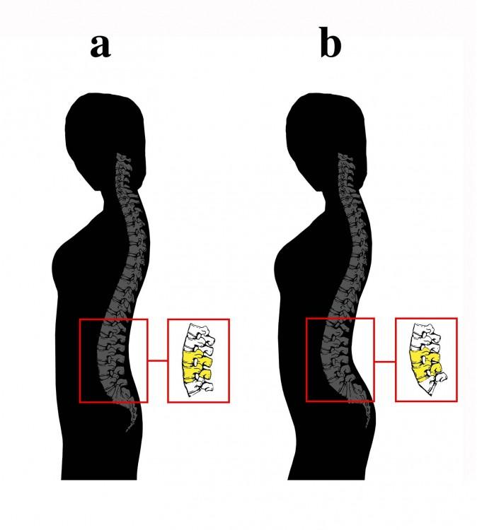 dibujos a blanco y negro del cuerpo de dos mujeres enfocándose principalmente en la curvatura de la columna