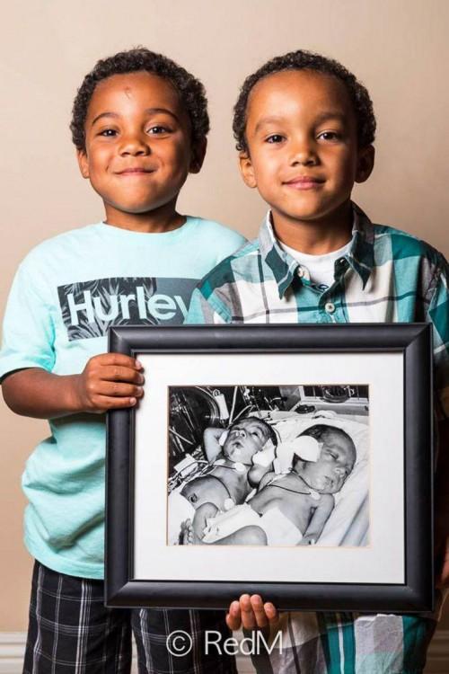 Dos niños sosteniendo un retrato entre los dos de cuando eran bebés prematuros