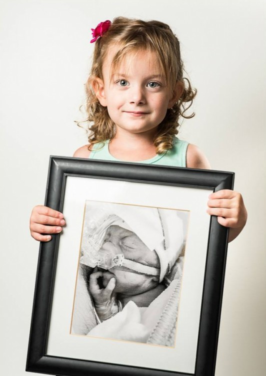 Niña con un retrato de ella cuando era bebé prematura