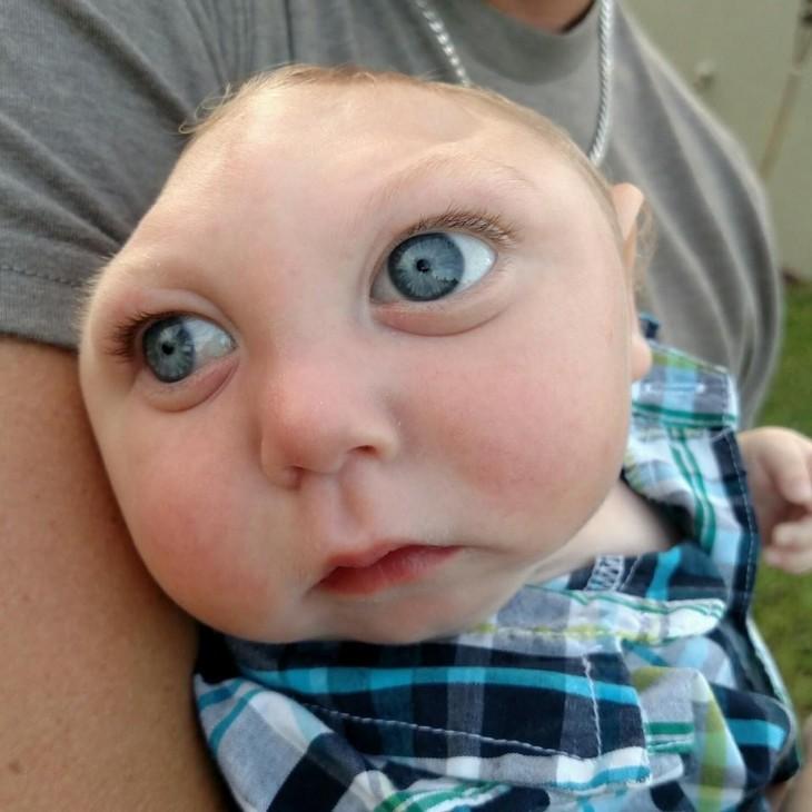 Jaxon Strong el niño con medio cerebro y cráneo que logró sobrevivir