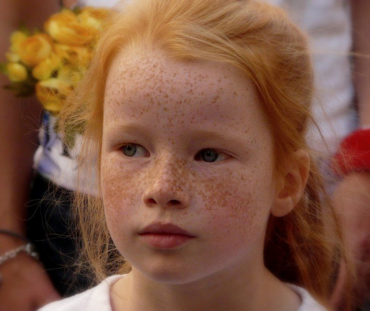 cara de una niña pelirroja con pecas en su cara