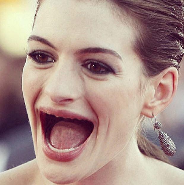Anne sin dientes