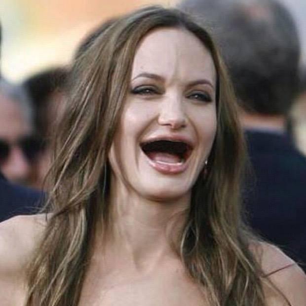 Angeline sin dientes