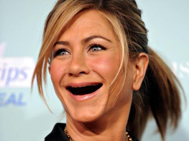 Jennifer sin dientes