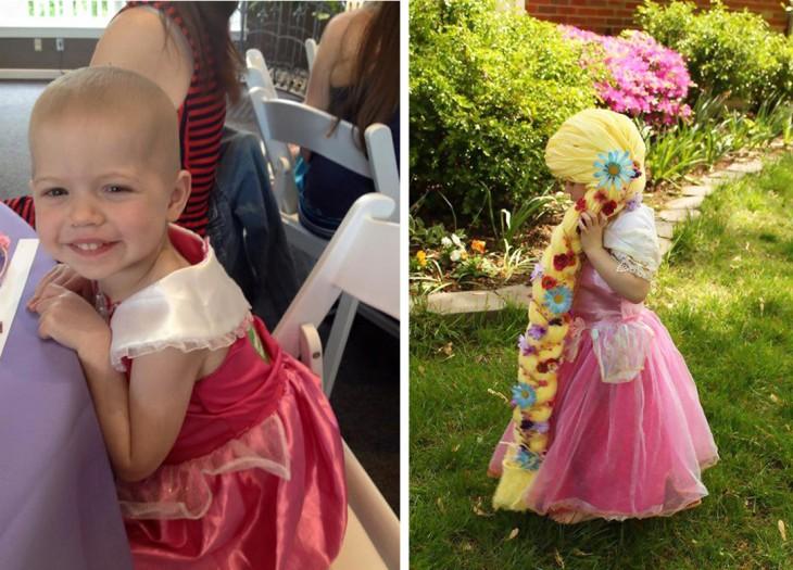 Antes y después de una niña de 2 años con cáncer