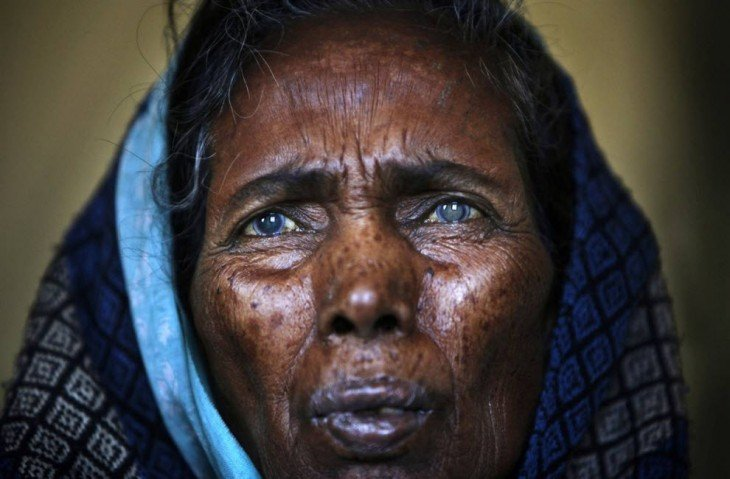 mujer ciega por cataratas en nepal