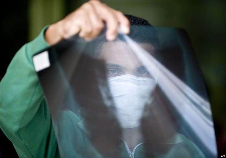 un hombre sosteniendo en su mano una radiografía