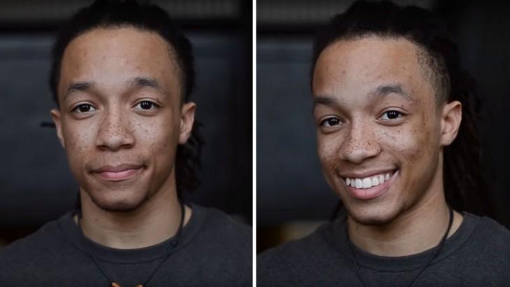 fotografía de un chico antes y después de sonreír