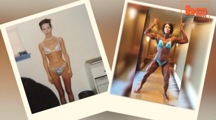 Laura Payne antes y después de la anorexia