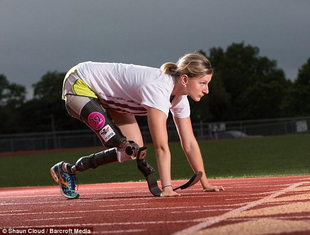 Tatsiana Khvitsko atleta sin piernas y con sólo 4 dedos