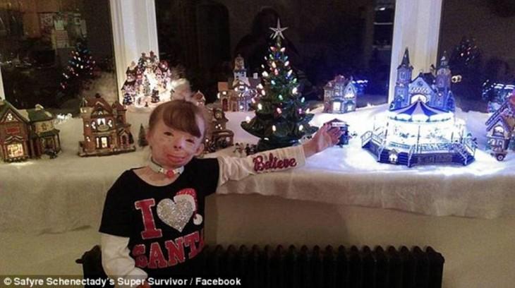 Pqueña quemada en su villa navideña disfrutando de un momento en familia