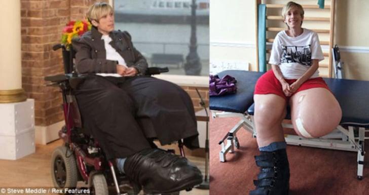 señora con las piernas extremadamente grandes